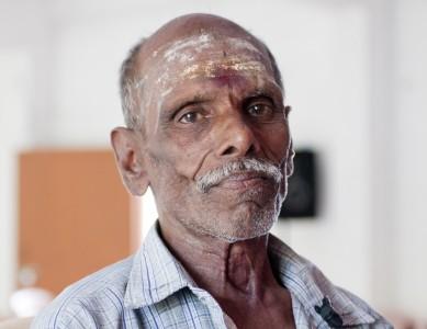 Meenakshi is an elderly man who SCAD support